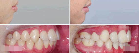 歪牙矫正12