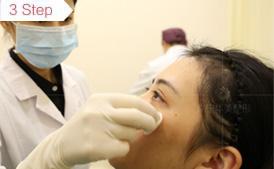 注射瘦脸表皮清洁消毒