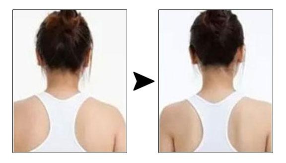 瘦肩针是什么呢?效果怎么样?