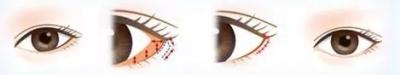 开眼角手术具体是怎么样的?